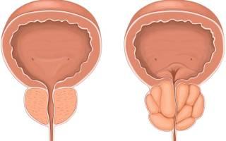 Результаты лечения простатита