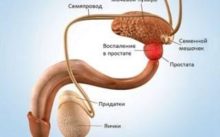 Антидепрессанты при лечении простатита боль в лимфоузлах простатит